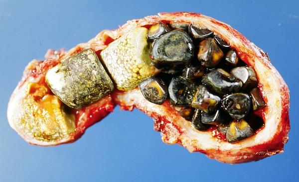 gallstones-11